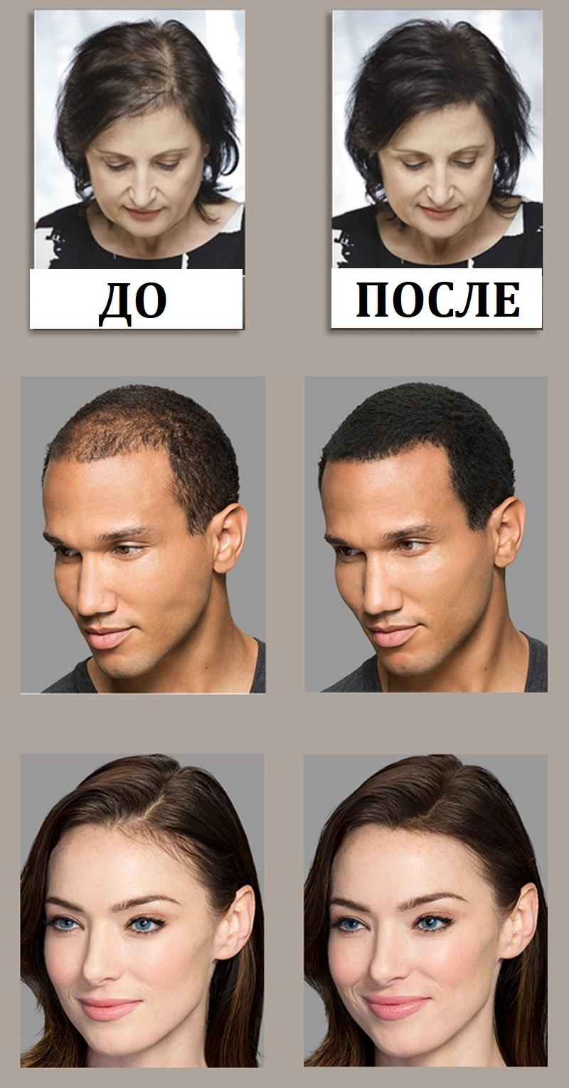 Загуститель волос Toppik фото до и после использования